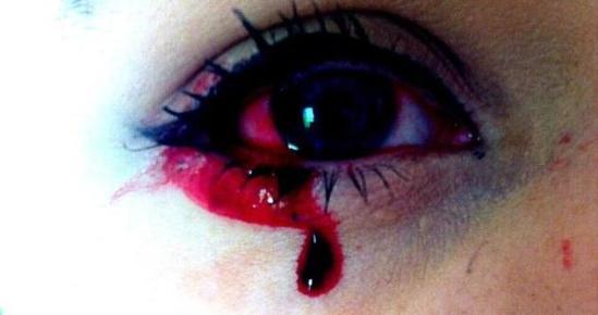 """17岁少女得神秘怪病 每天""""七窍流血""""半小时"""