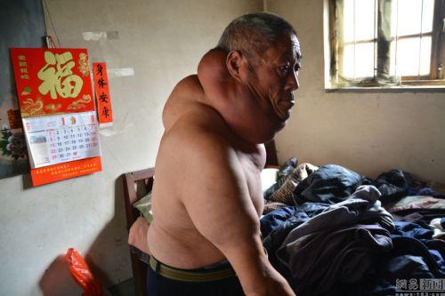 男子脖子比头大疼痛难忍望获助 一家五口全靠儿子打工养活