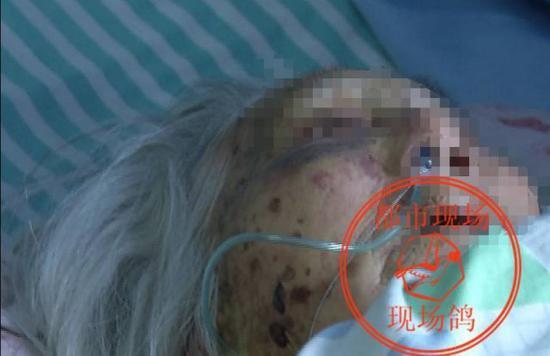 王老太的二儿子:有两个女的法医检查了小便说是强奸了。