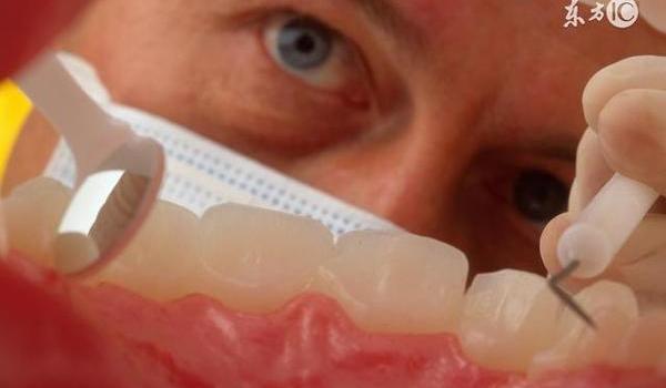 """牙齿坏得早,平时需警惕""""干燥"""""""