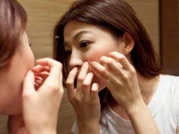 脸上这个区域的痘痘千万不能挤,不止留下痘印