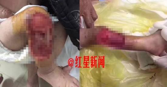 3月18日晚,小金桂被老鼠啃咬的伤口 图据志愿者