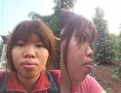越南女子Kim太丑没人娶 花10万整容嫁富二代 娶个越南女孩多少钱
