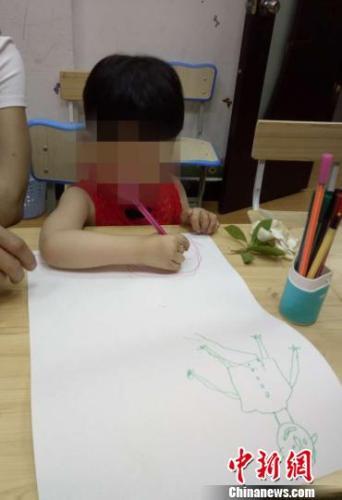 3岁女孩患罕见病天生16指 手术后爱握笔画画