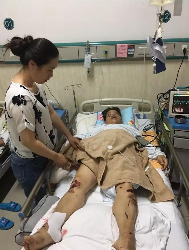 福州女环卫工被大巴司机打伤 全身20多处骨折