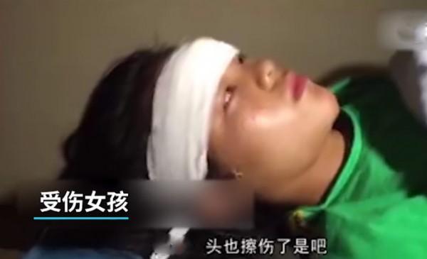 14岁女孩表演杂技坠落幸无生命危险 观众目睹惊险全过程