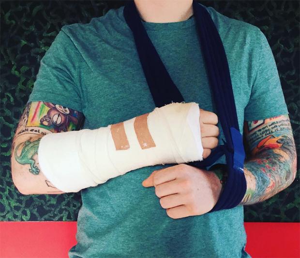 黄老板骑自行车出事故致手臂骨折 或影响巡演进度