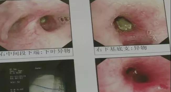 """奶茶里的""""珍珠""""体内半年不化 8岁男童被害惨了"""