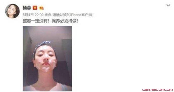杨蓉曾自曝想整容事件始末 武汉整容杨蓉割双眼皮是同名同姓吗?