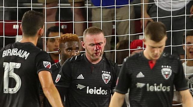 鲁尼鼻子受伤是怎么回事会影响后面的赛程么? 赛后缝了五针