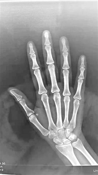 手机钢化膜爆裂 碎片扎进拇指一个月才发现