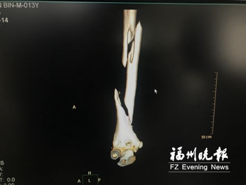 """福州13岁男孩为拍""""抖音"""" 右上臂骨头绞成""""三节棍"""""""