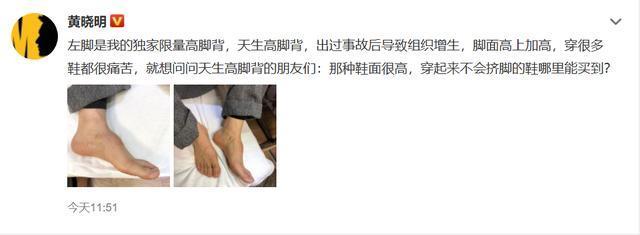 黄晓明回应垫鞋垫说了什么 黄晓明首晒脚背受伤图粉丝心疼