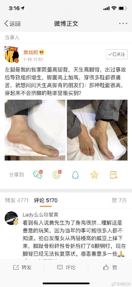 黄晓明增高鞋垫变乱原形是什么?黄晓明晒脚背照片回应粉丝直呼疼爱