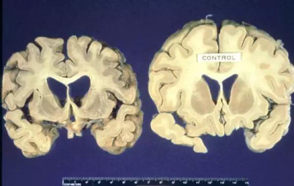 大脑被啃光,科学家担忧僵尸鹿恐影响人类!加拿大两省已沦陷!