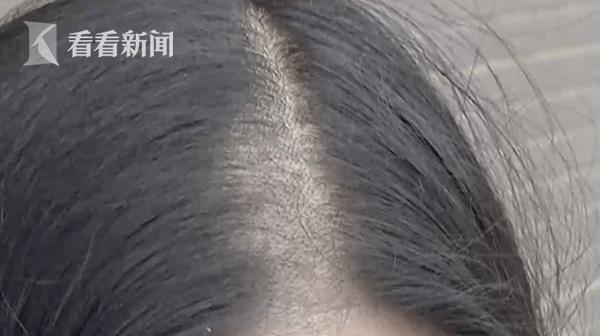 旅店睡觉悟来头秃了来龙去脉 男子的头发是被谁剃了为什么秃了