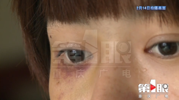 家暴求助被打骨折 丈夫被警方刑事拘留