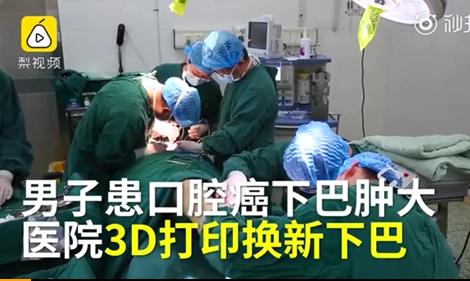 医生用3D打印为患者换新下巴这么回事?黑科技让网友大开眼界
