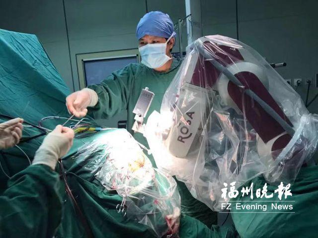 """女子大脑乱""""放电"""" 机器人植入电极手术仅1小时"""