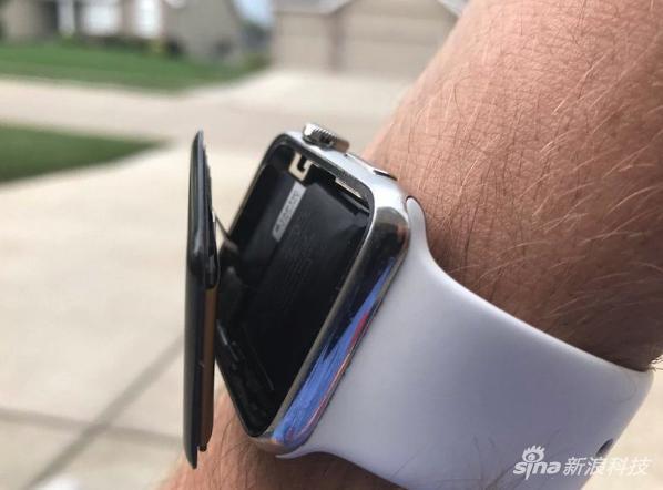 苹果再遇集体诉讼 这回是因为Apple Watch电池鼓包