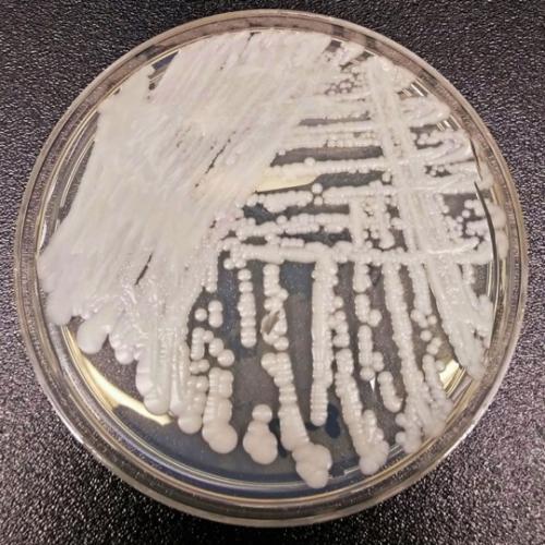 超级真菌在美爆发