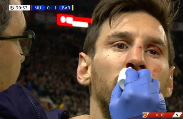 【吓傻了的表情图片】吓傻了!梅西受伤具体什么情况? 梅西受伤流血倒地1分多钟