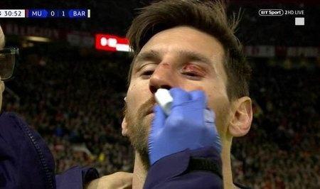 梅西受伤是什么情况 梅西受伤严重吗是否缺席后面的比赛