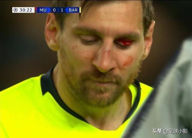 巴萨战胜曼联比分1-0 梅西受伤满脸是血会影响到下一场的比赛么