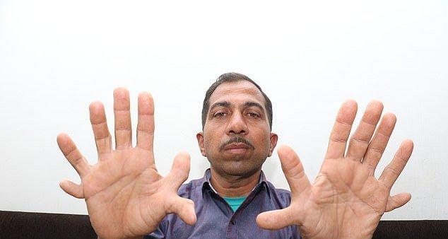 木匠有28個手指腳趾怎么回事? 木匠有28個手指腳趾圖片曝光