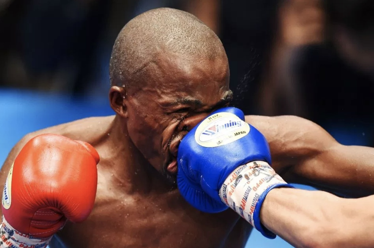 南非拳王脸被打扁 嘴唇扭曲鼻子变形太残暴