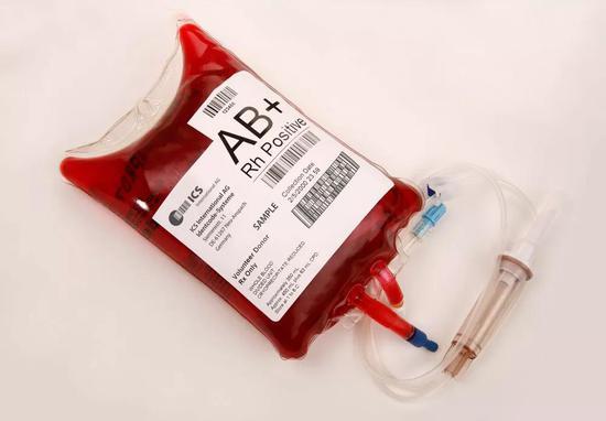A型血秒变O型血怎么回事 A型血是如何变成O型血的