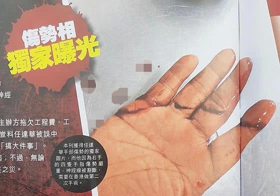 任达华右手伤口首曝光 四只手指被割出很深的伤口 食指几乎断