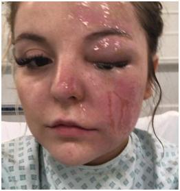 微波炉煮蛋遭爆炸怎么回事? 微波炉煮蛋遭爆炸女子烧伤失明
