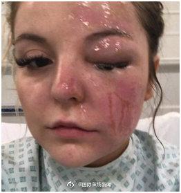 """小心!英国女子用微波炉煮蛋遭""""爆炸"""",眼睛恐永久失明"""