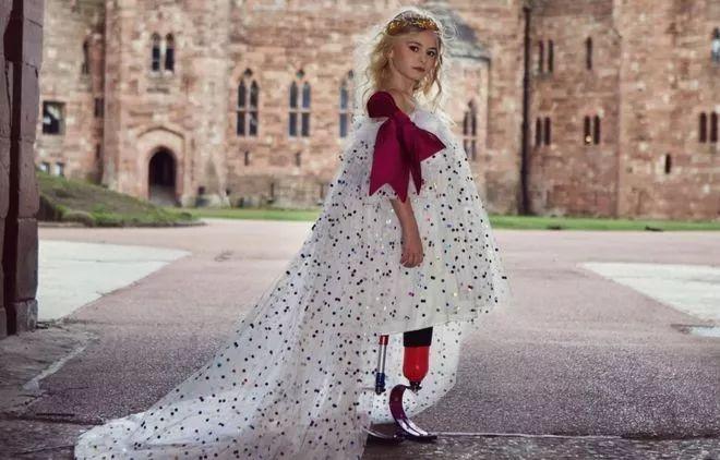 截肢仙女红遍全球 截肢仙女个人资料组图 截肢仙女感人故事