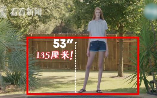 16歲女生逆天長腿怎么回事:腿長135厘米的原因是什么