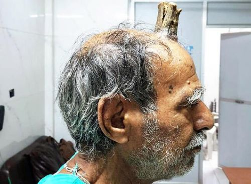 男子头部长出牛角图片曝光令人惊悚 男子头部为什么会长牛角原因