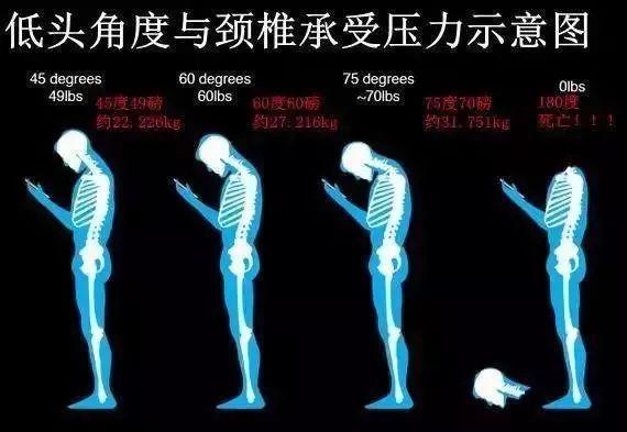 福州一男子下肢无力、行走不稳……教你4招远离颈椎病!