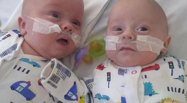 英最小双胞胎生还照片曝光十分可爱 英最小双胞胎生还有多小