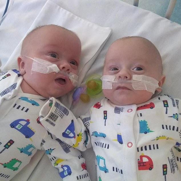 英最小双胞胎生还怎么回事 经过129天的治疗后顺利回家