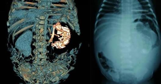 男婴腹中藏寄生胎怎么回事 男婴腹中为什么会藏寄生胎照片曝光