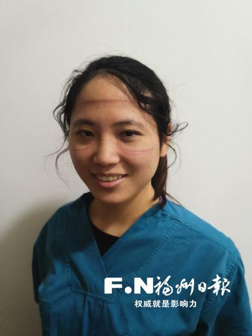 吴微脱下面罩后,脸上留下的勒痕清晰可见。(市六医院供图)