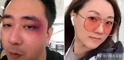网曝王自健被妻子家暴细节:扇耳光,还用烟头烫