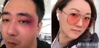 網曝王自健被妻子家暴細節:扇耳光,還用煙頭燙