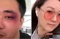 王自健被家暴是真的嗎?王自健為什么被家暴細節爆出震驚網友