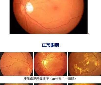 吃零食失明?这是真的!看眼病意外发现血糖失控